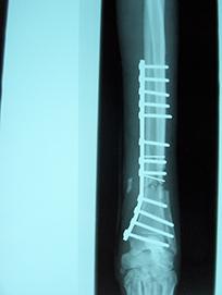 Radius and ulna fracture