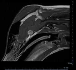 Pituitary tumour on MRI